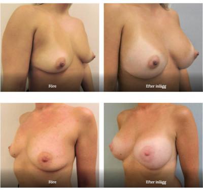 Före och efter bröstkirurgi