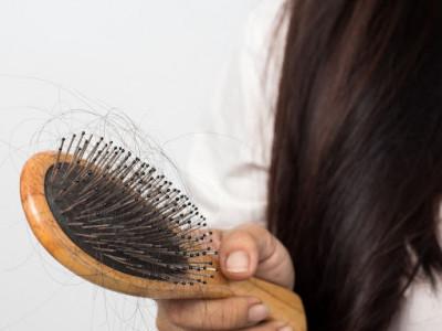 Olika stadier av håravfall